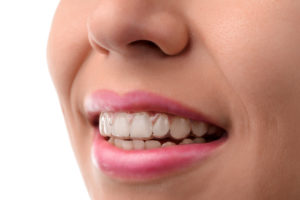 Woman with Invisalign clear braces