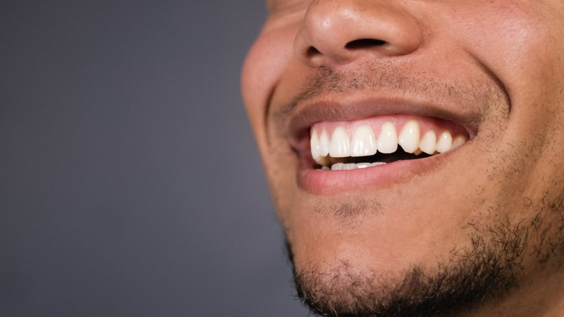 Man showing off healthy gums
